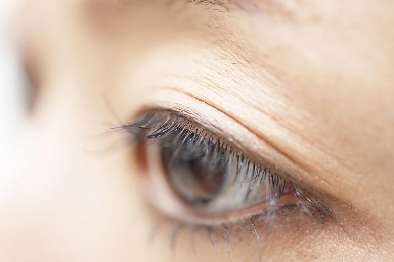 上瞼が通常の高さより下がっている状態を指します。